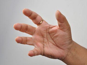 800px-male_right_hand_-_kolkata_2011-04-19_2333