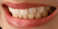 dents serrées sourire bruxisme